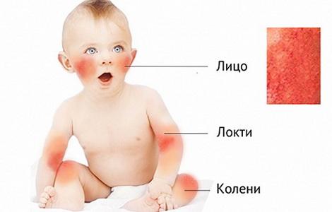 диатез у детей-грудничков лечение