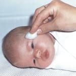 обработка глаз новорожденного