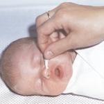 обработка носа новорожденного
