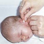 обработка ушей новорожденного