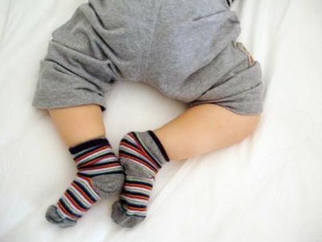 Дисплазия тазобедренных суставов у новорожденного